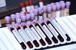 Анализ крови на хеликобактер пилори