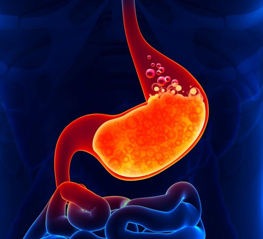 повышение кислотности желудка: лечение и симптомы
